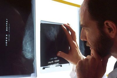 New Study Supports Mammography Screening at 30 for Some Women