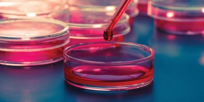 Clinical Microbiology Meets Total Laboratory Automation
