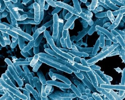 The Need for Speed in Tuberculosis Diagnostics