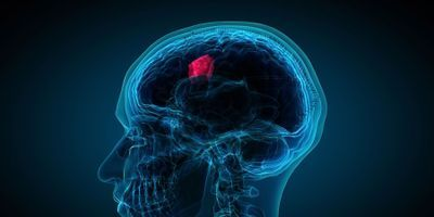 Ultrasound Blasts Potent Glioblastoma Drug into Brain Tumor