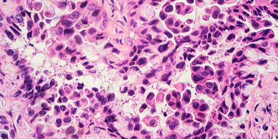 OncoMX Knowledgebase Enables Research of Cancer Biomarkers and Related Evidence