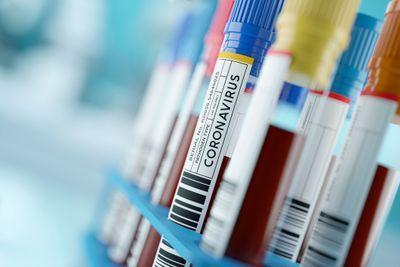 Flow Cytometry Reveals Immune System Dysregulation in Coronavirus Patients
