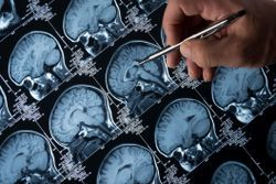 How Accurate are Biomarkers for Diagnosing Alzheimer's?