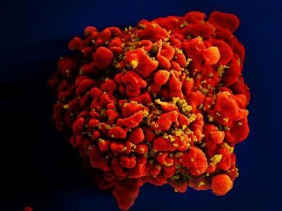 Critical Window for Re-Infection with HIV after Stem Cell Transplantation