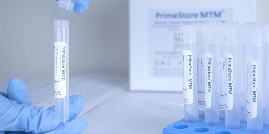 EKF Secures COVID-19 Novel Sample Collection Kit Manufacturing and Supply Contracts