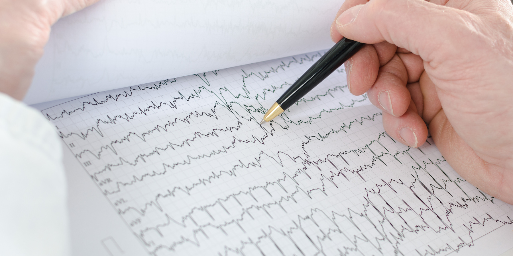 More Than 200 Genetic Factors Cause Heart Arrhythmias