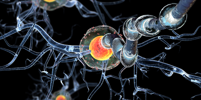Experts Clarify Subtypes of Multiple Sclerosis