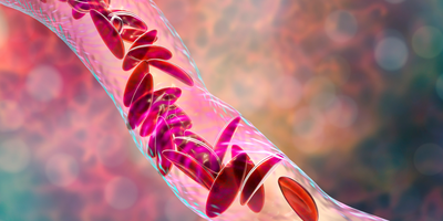 Improved Treatment Found for Children with Sickle Cell Anemia