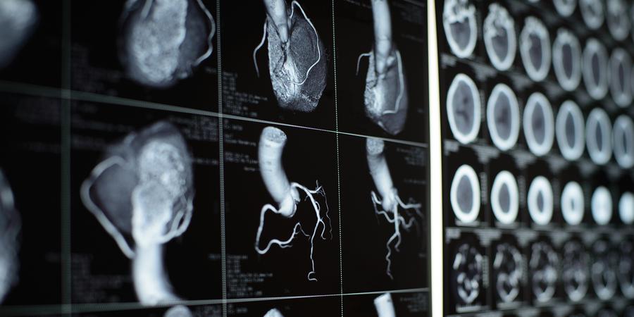 New Insights into Non-invasive Diagnostic Procedures for Suspected CHD
