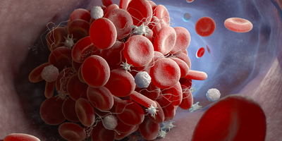 Cardiology Trial Shows Potential Benefit of Genetic Testing When Selecting Blood Thinners