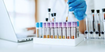 Regional Labs Get in the Clinical Trial Game