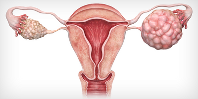 Researchers Develop Rapid Test for Ovarian Cancer Detection