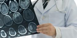Breakthrough Blood Test Developed for Brain Tumors