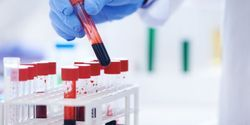 New Experimental Blood Test Determines Which Pancreatic Cancers Will Respond to Treatment