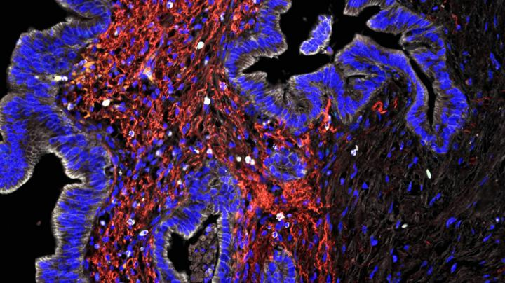 New Map of the Immune Landscape in Pancreatic Cancer Could Guide Immunotherapy