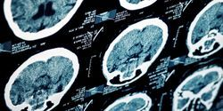Early Signs of Alzheimer's Disease in People With Down's Syndrome