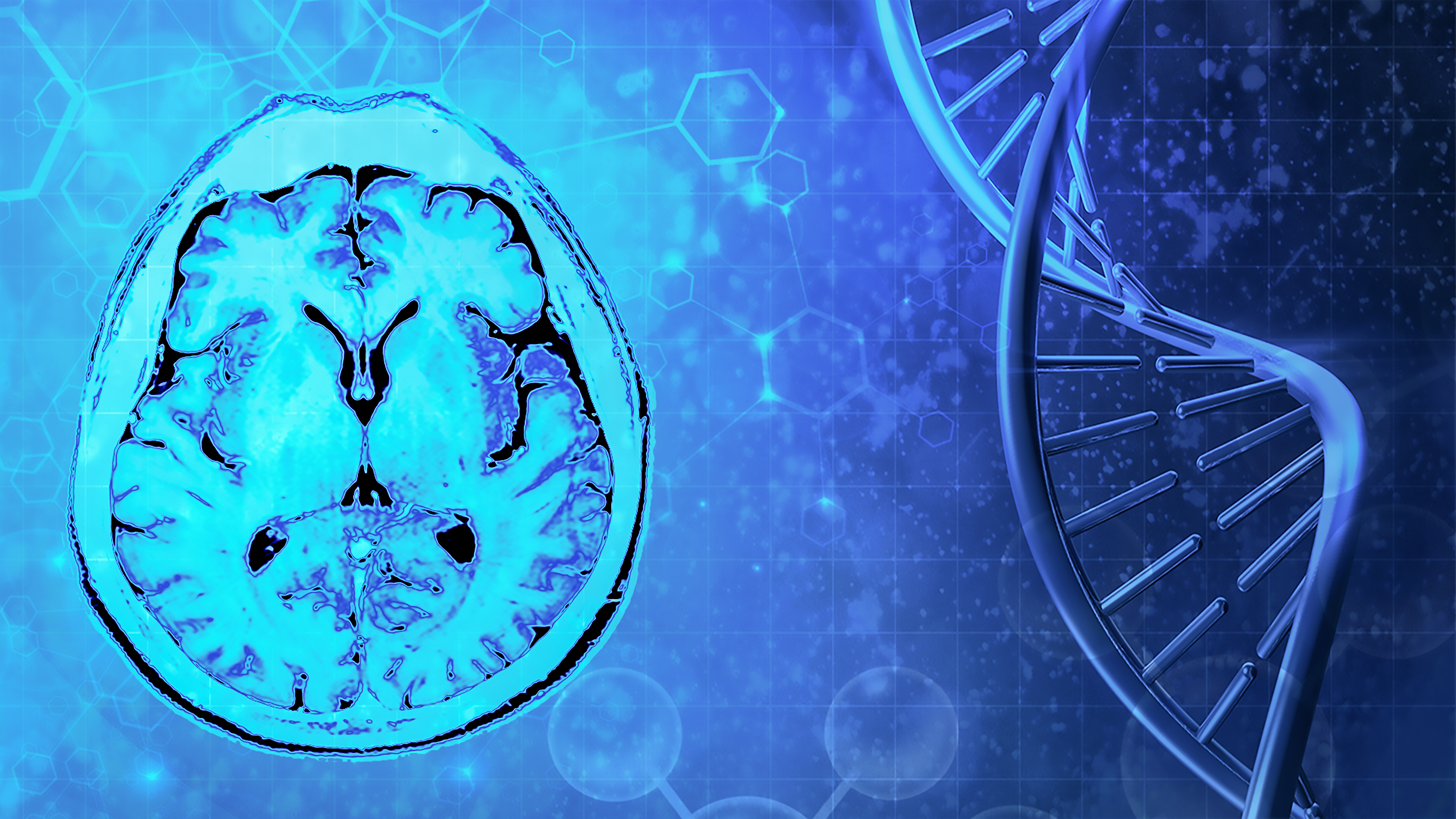 NGS Approaches for Diagnosing Neurological Diseases