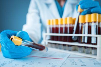 Prenatal Testing in Your Lab (Survey)
