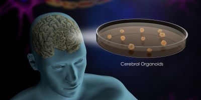 New Screening System Identifies Genetic Cause of Microcephaly