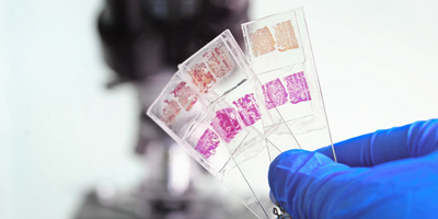 A photo of a lab technician wearing PPE holding glass tissue histology slides