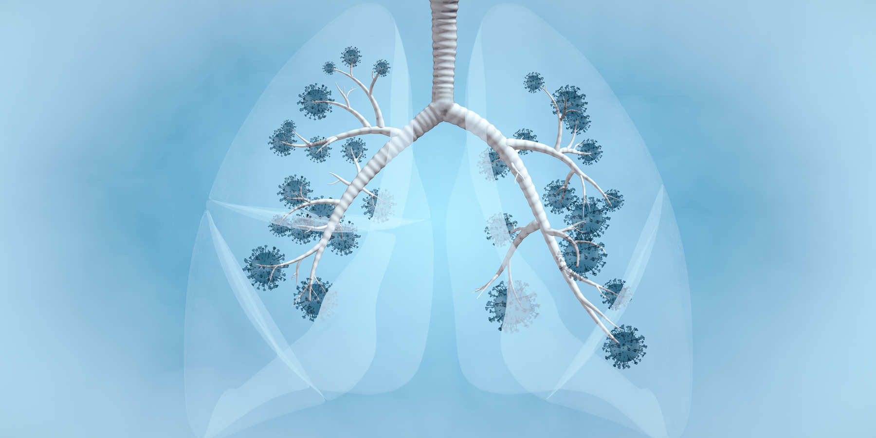 Study Defines Small-Cell Lung Cancer Subtypes and Their Vulnerabilities