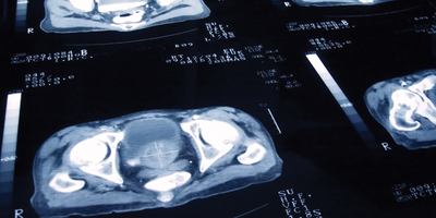 MRI for Prostate Cancer Diagnosis Equals or Beats Current Standard