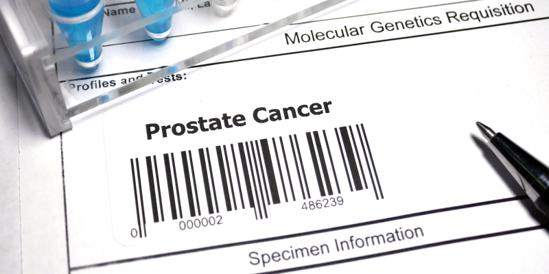 Genomic Test Helps Estimate Risk of Prostate Cancer Metastasis, Death