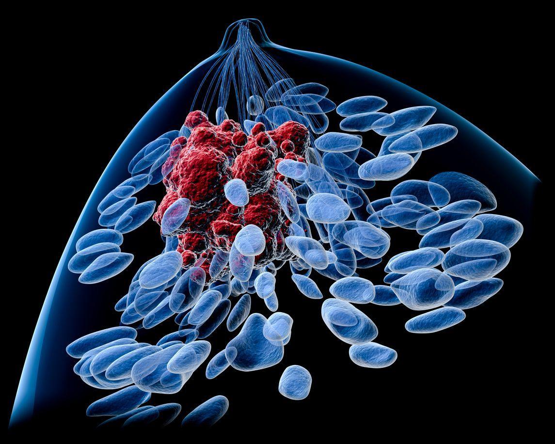 Molecular Imaging Determines Effectiveness of Novel Metastatic Breast Cancer Treatment