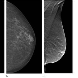 Digital Breast Tomosynthesis Reduces Rate of Interval Cancers