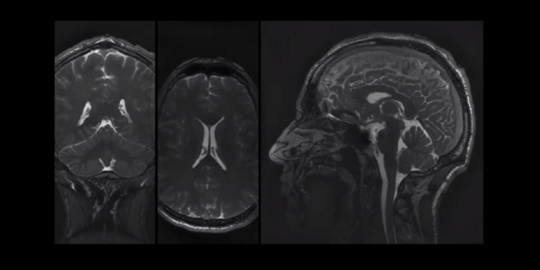 New MRI Technique Captures Brain Movement in Stunning Detail