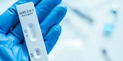 FDA: Antibody Testing Not Recommended to Assess COVID-19 Immunity