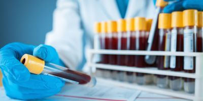 Blood Test Can Accurately Reveal Underlying Neurodegeneration