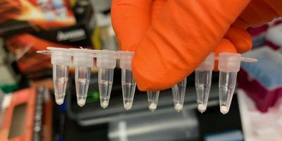 Certain COVID-19 PCR Tests Can Be Freeze Dried
