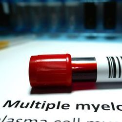 Researchers Study Potential New CAR-T Cell Therapy for Multiple Myeloma
