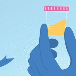 Urine Biomarkers Show Promise for Prostate Cancer