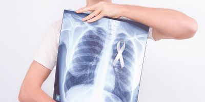 CHEST Releases Expert Guidelines for Lung Cancer Screening