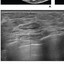 Routine Screening for BI-RADS Lesions on Automated Whole-Breast Ultrasound