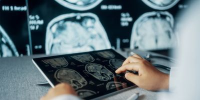 NIH-Funded Study Shows Imaging after Mild Brain Injury May Predict Outcomes