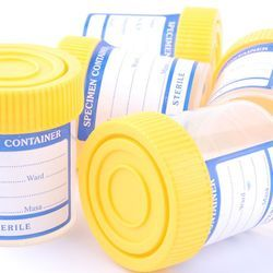 Preoperative Screening Urinalysis Is Widely Used—but Usually Unnecessary