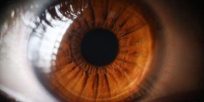 Eyes Provide Peek at Alzheimer's Disease Risk
