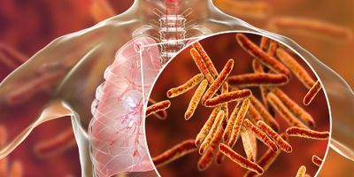 Rapid Communication on Updated Guidance for the Management of TB