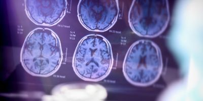 Inflammatory Proteins Help Better Diagnose Progression of Alzheimer's Disease
