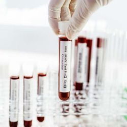 Blood Test Reveals When Benign Tumors Turn Cancerous