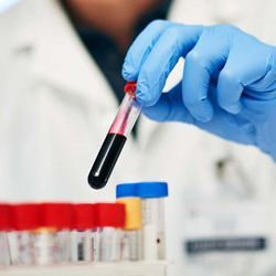 Test to Predict Which Patients with Rare Blood Disease Will Respond to Treatment