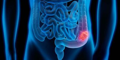 A Gene That Controls the Severity of Colon Cancer