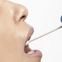 Saliva Testing May Allow Early Detection of Certain Head and Neck Cancers