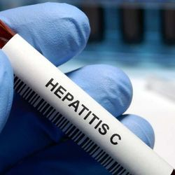 Scientists Find a Key to Hepatitis C Entry into Cells