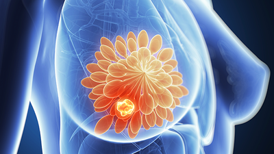 Cancer Tissue-Freezing Approach May Help More Breast Cancer Patients in Lower Income Countries