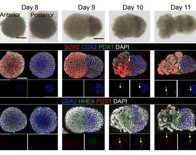 World's First Three-Organoid System Opens Doors for Medical Research and Diagnosis